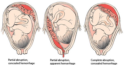 Placenta abruption