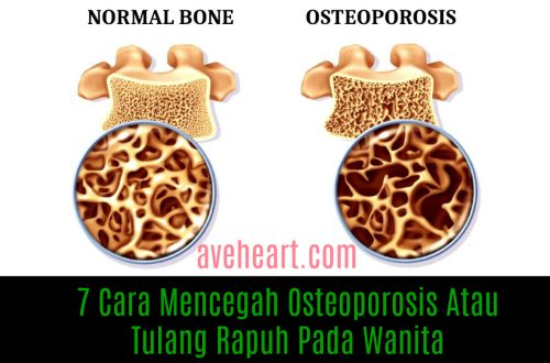 7-cara-mencegah-osteoporosis-atau-tulang-rapuh-pada-wanita